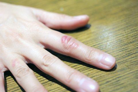 しもやけの対処方法と原因 症状について!かゆいときに治し方