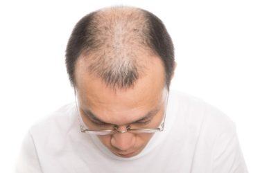 薄毛の原因と対策とは?治療の方法と費用を解説